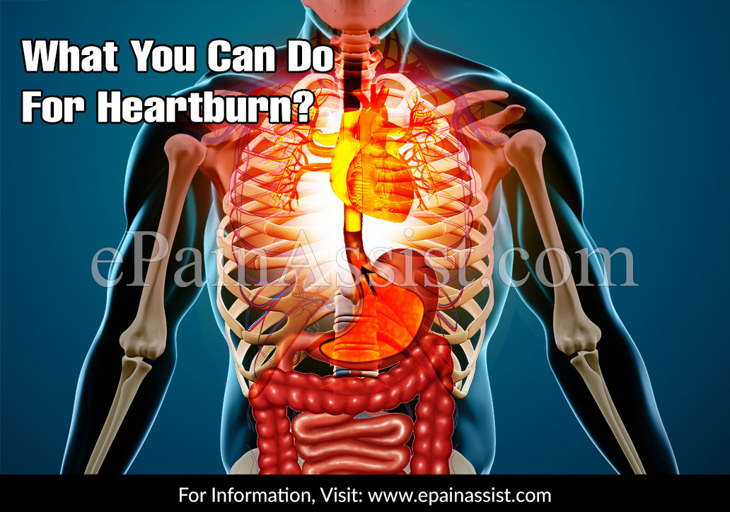 What Helps with Heartburn?