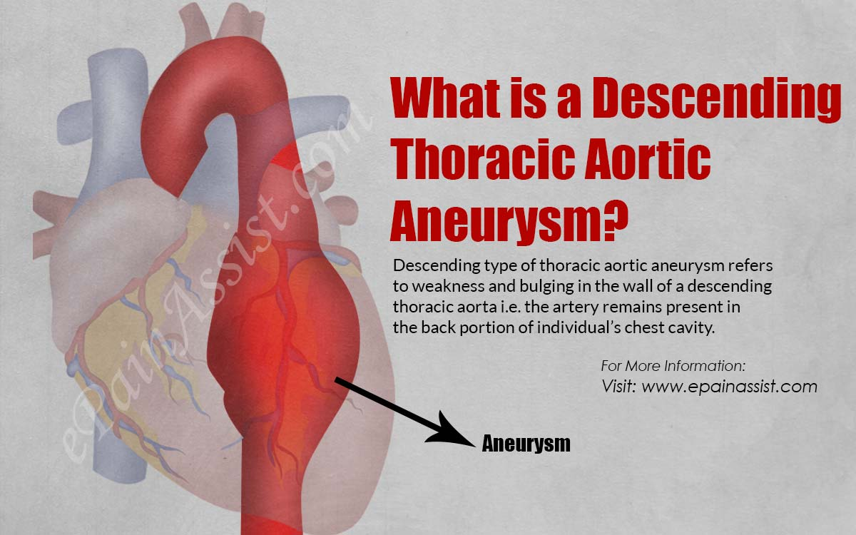 What Is A Descending Thoracic Aortic Aneurysm