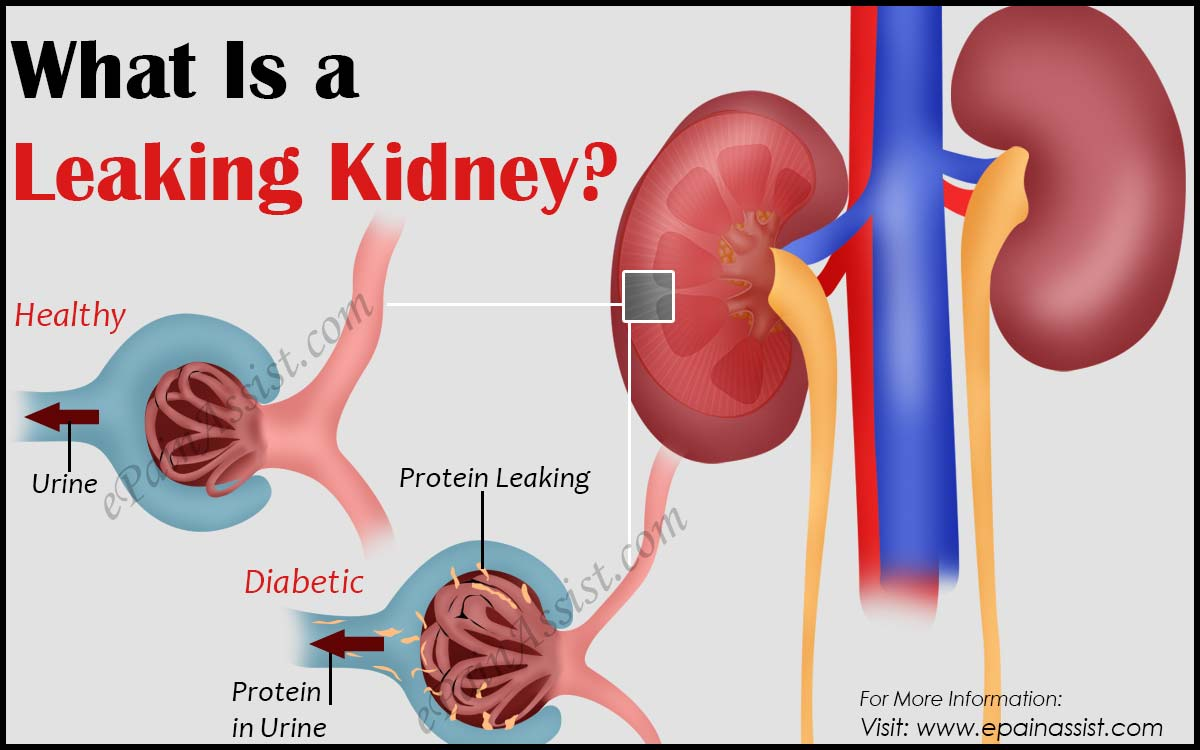 What Is a Leaking Kidney?