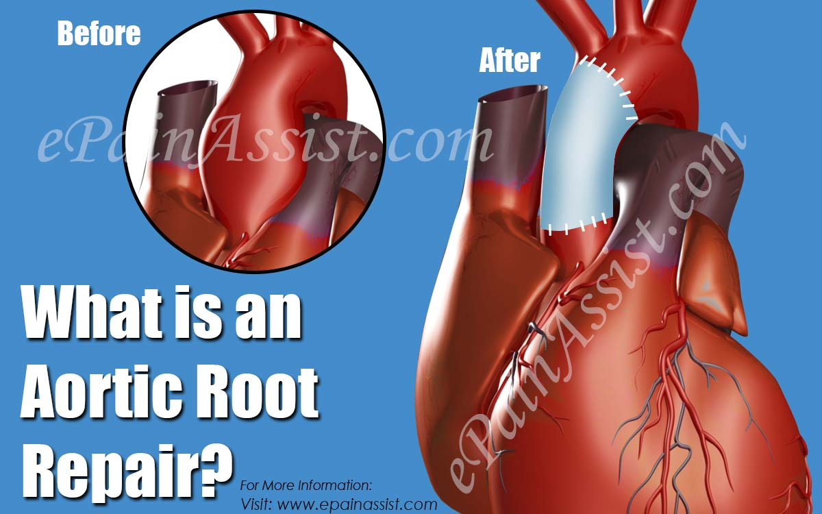 What is an Aortic Root Repair?