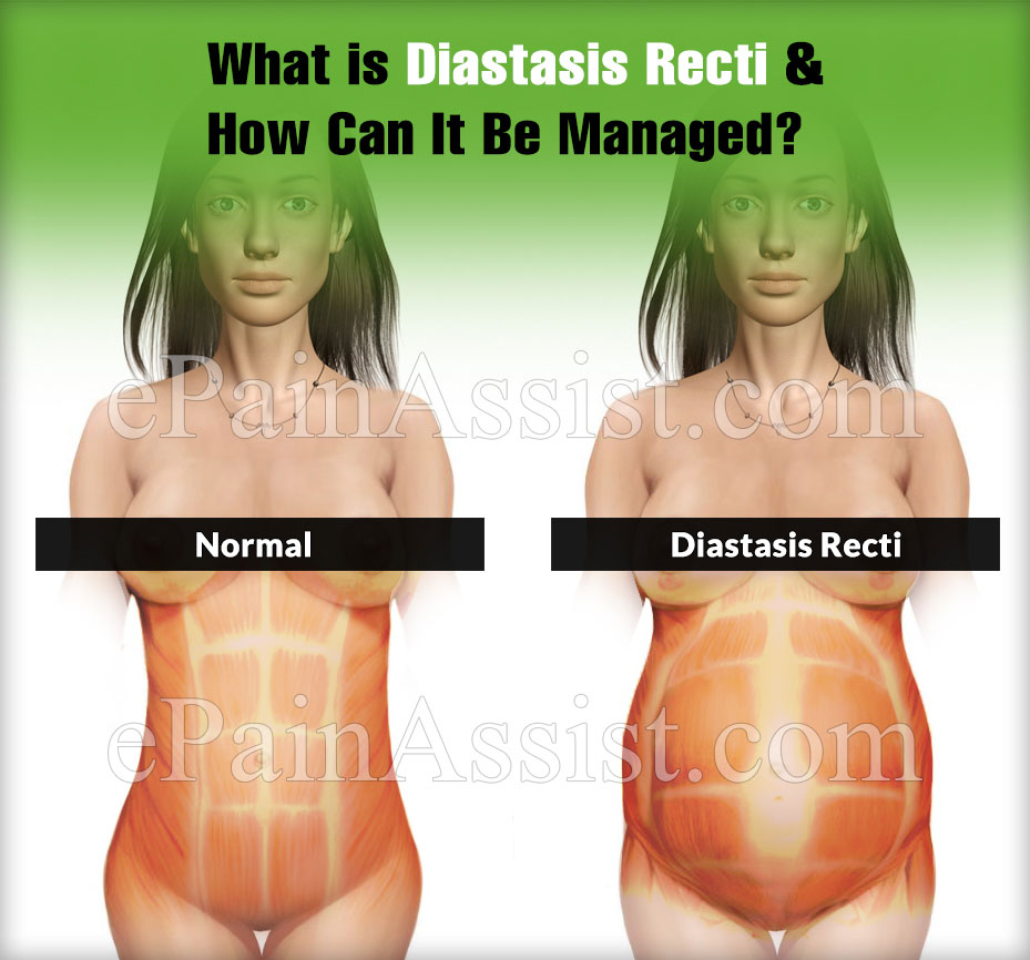 What is Diastasis Recti & How Can It Be Managed?