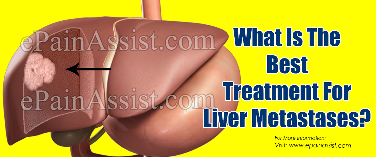 What Is The Best Treatment For Liver Metastases?