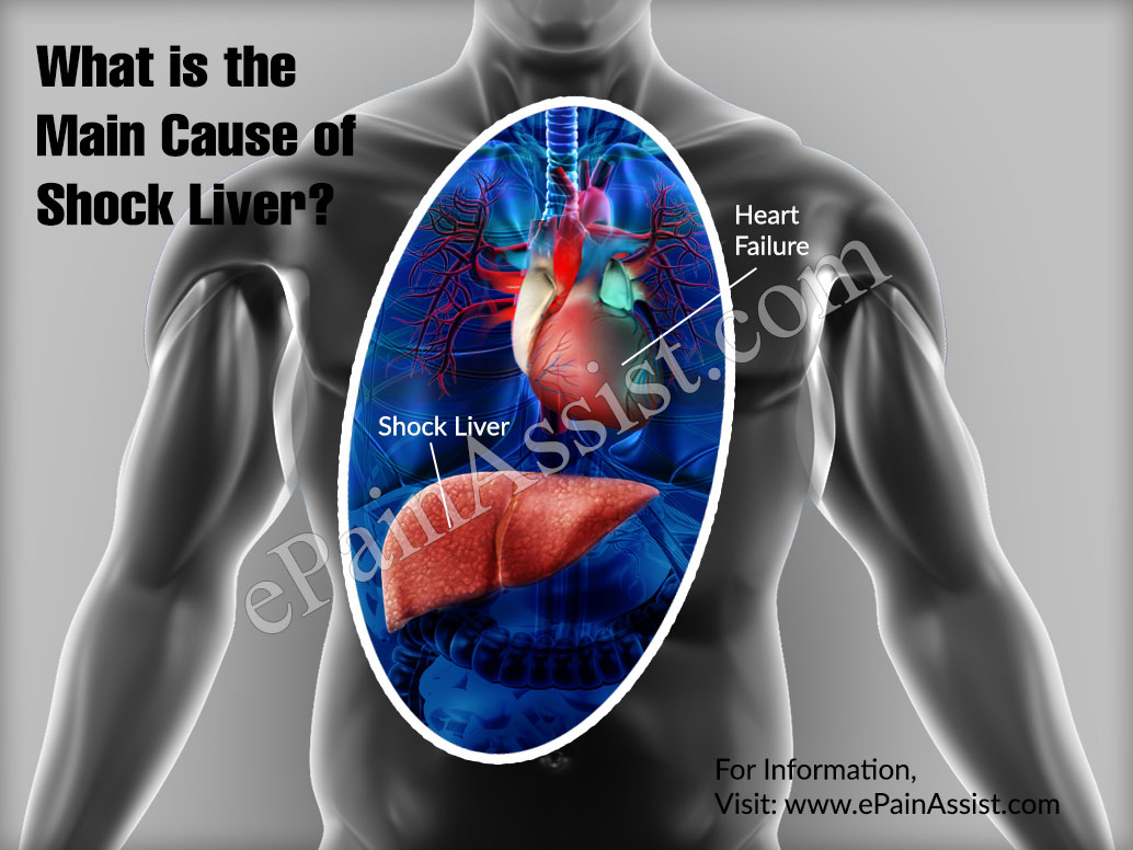 What is the Main Cause of Shock Liver?