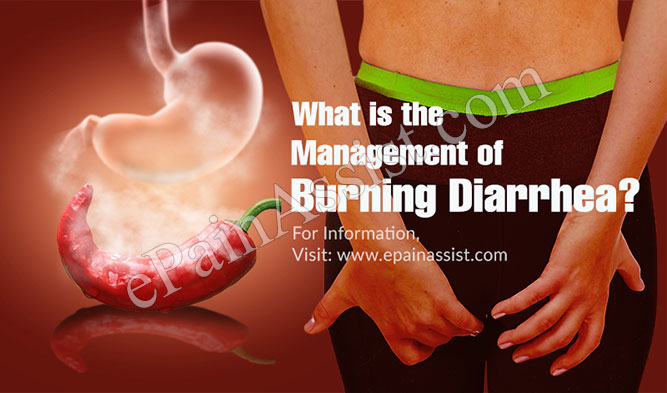 What is the Management of Burning Diarrhea?