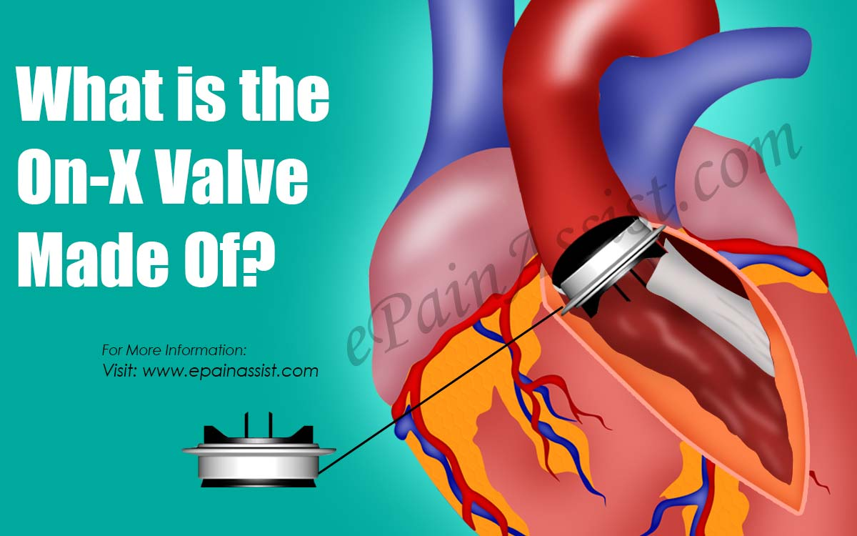 What is the On-X Valve Made Of?