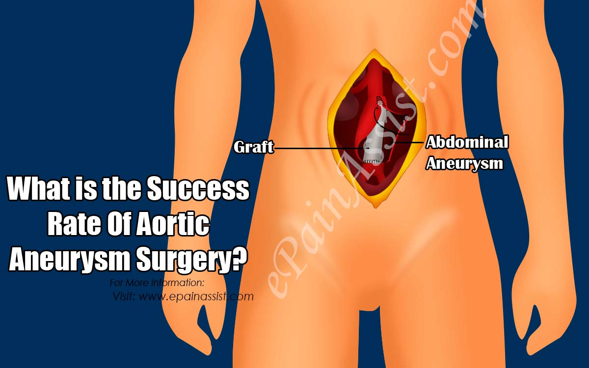 What is the Success Rate Of Aortic Aneurysm Surgery?