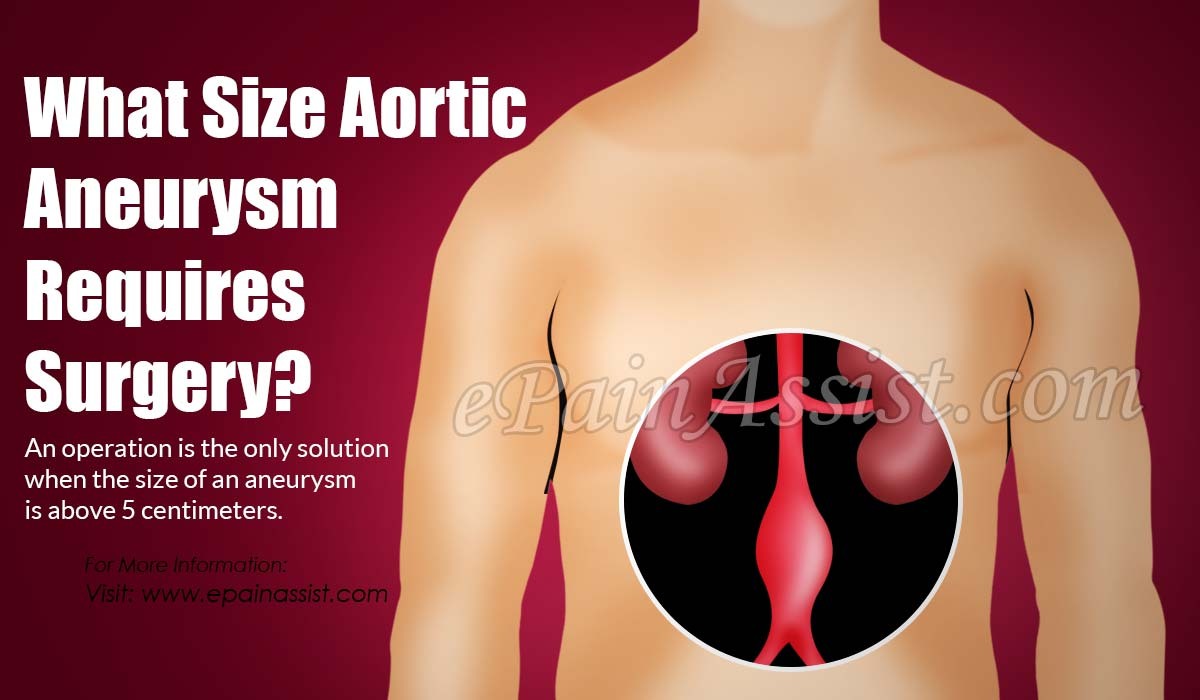 What Size Aortic Aneurysm Requires Surgery?