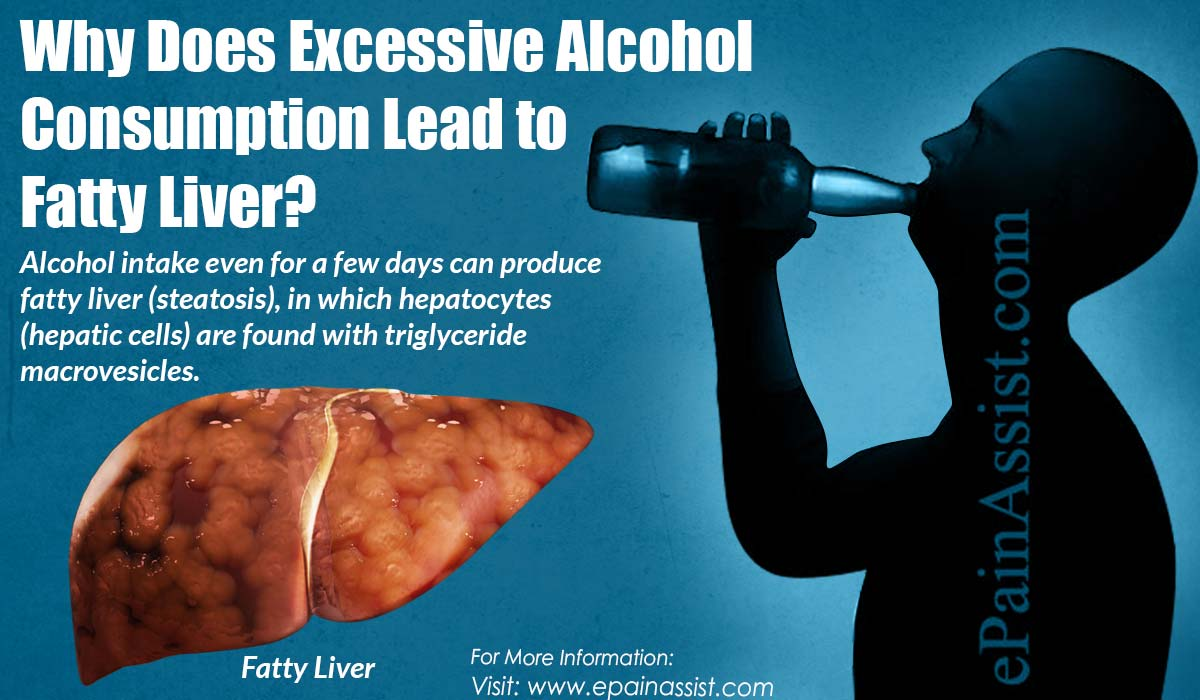 Why Does Excessive Alcohol Consumption Lead to Fatty Liver?