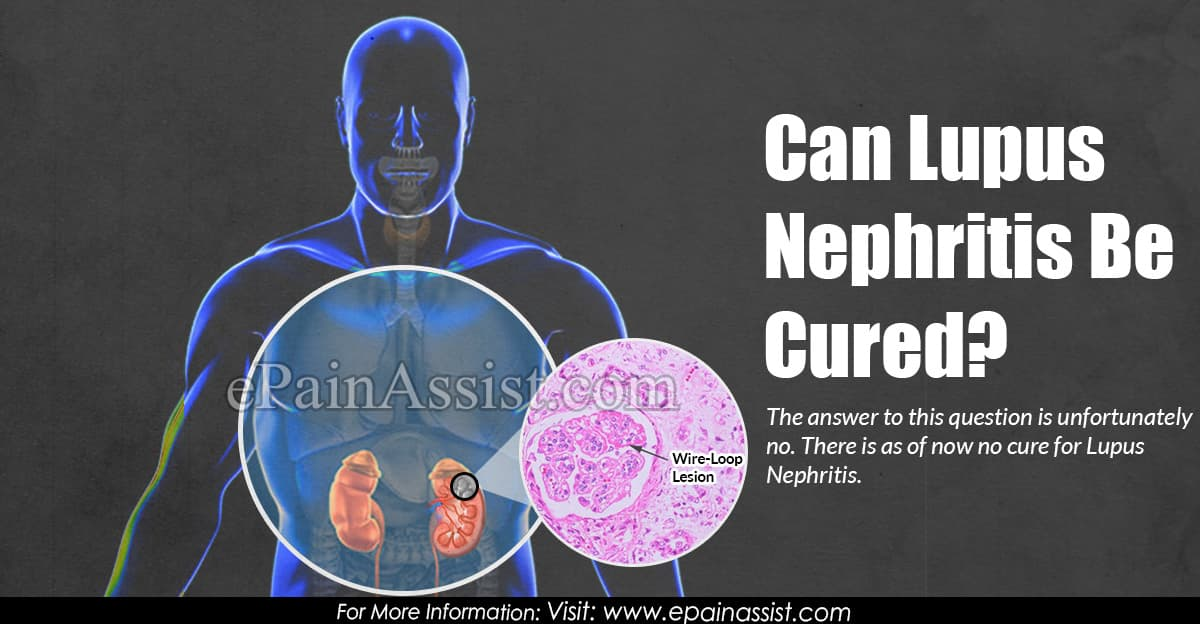 Can Lupus Nephritis Be Cured?