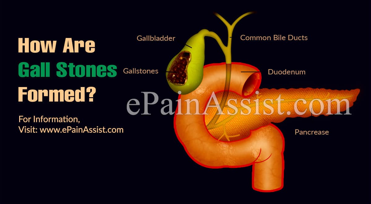 How Are Gall Stones Formed & How To Prevent Them?