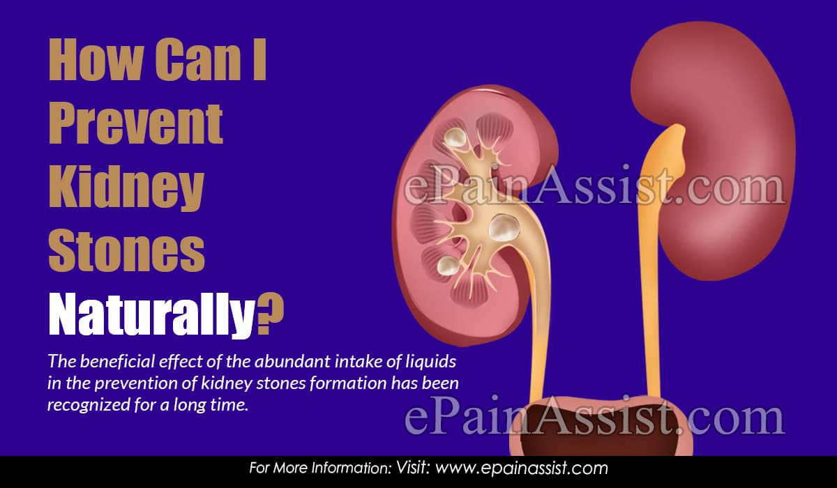 How Can I Prevent Kidney Stones Naturally?