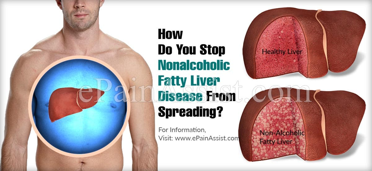 How Do You Stop Nonalcoholic Fatty Liver Disease From Spreading?