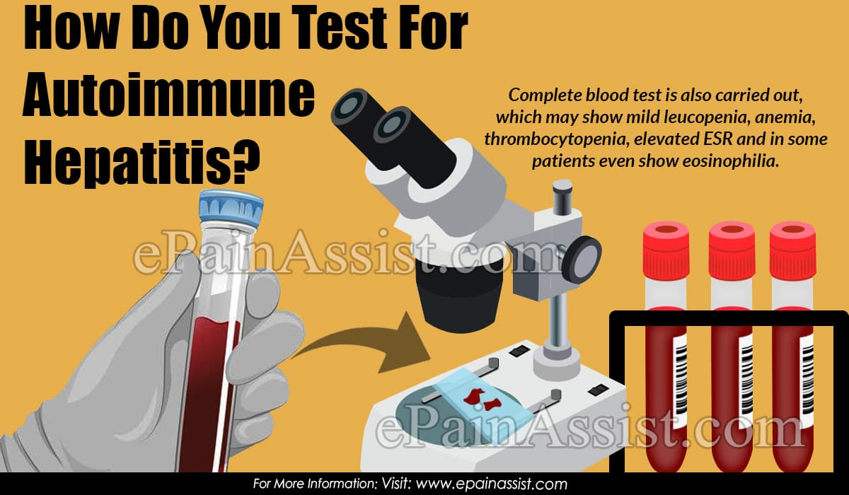 How Do You Test For Autoimmune Hepatitis?