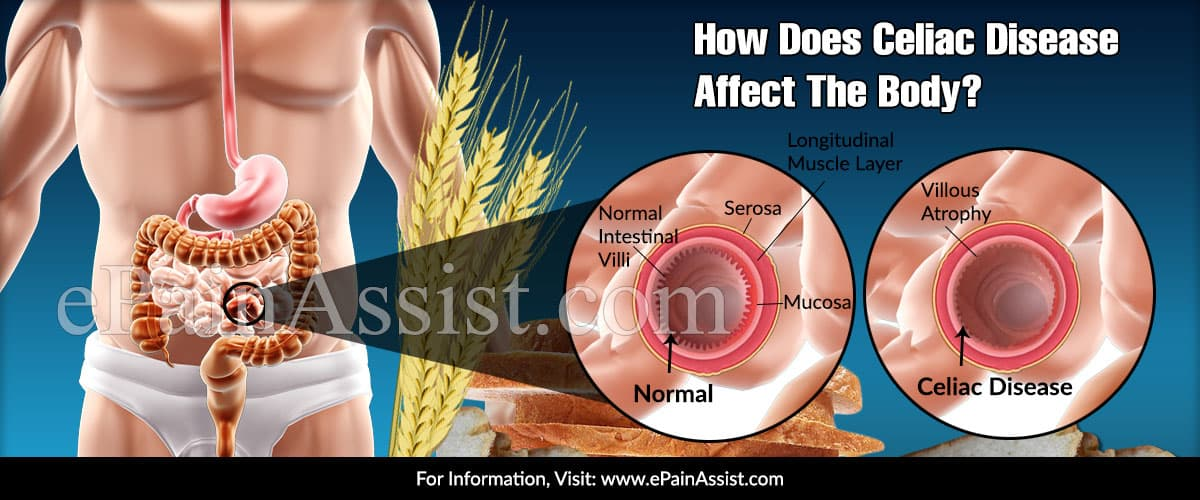 How Does Celiac Disease Affect The Body?