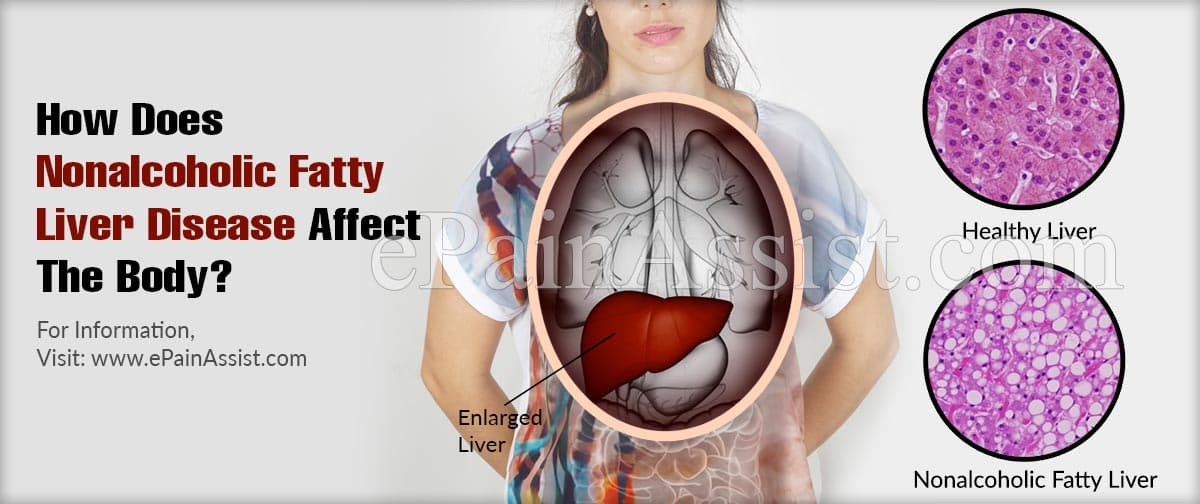 How Does Nonalcoholic Fatty Liver Disease Affect The Body?