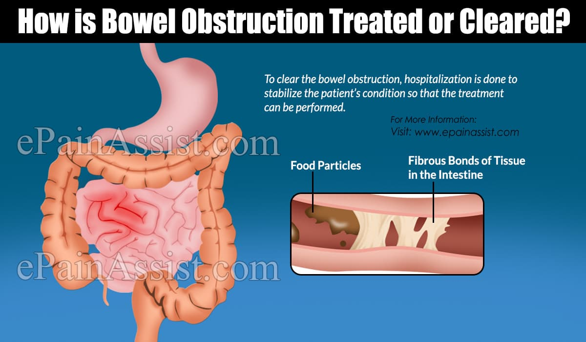 How is Bowel Obstruction Treated or Cleared?