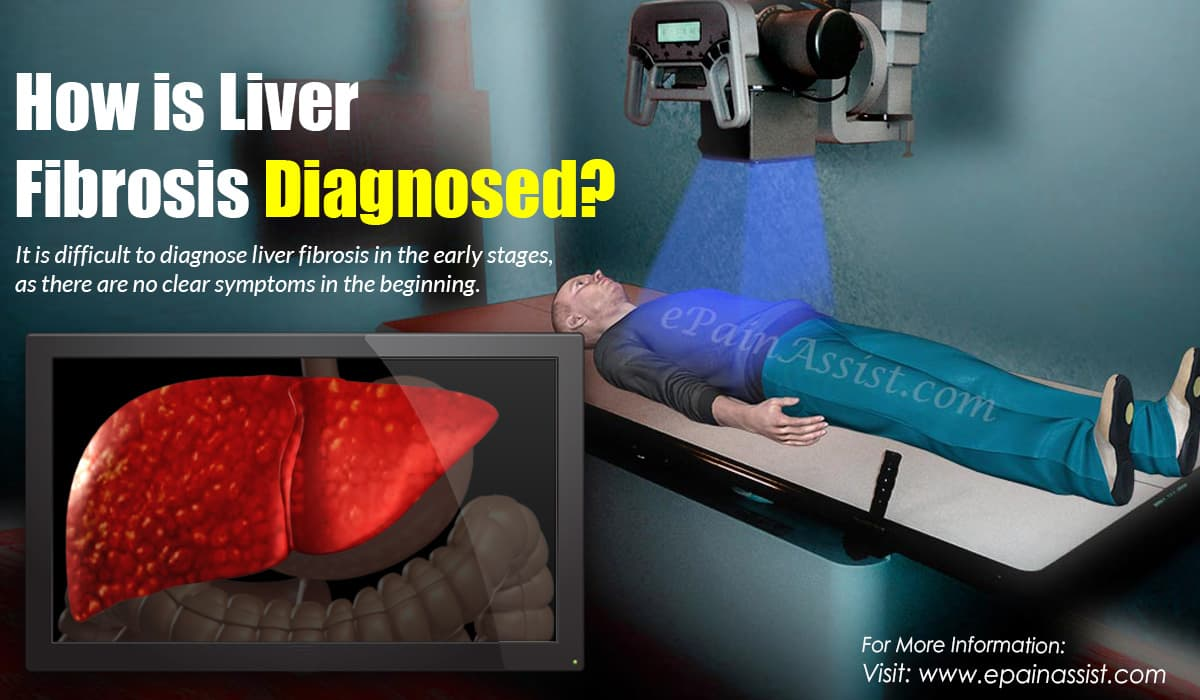 How is Liver Fibrosis Diagnosed?