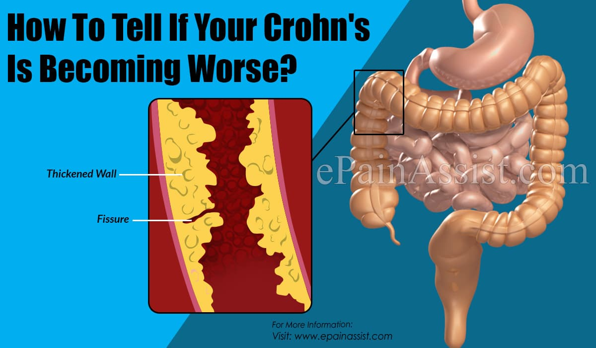 How To Tell If Your Crohn's Is Becoming Worse?