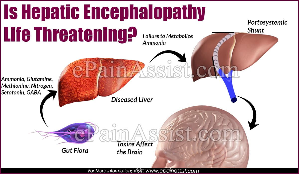 Is Hepatic Encephalopathy Life Threatening?