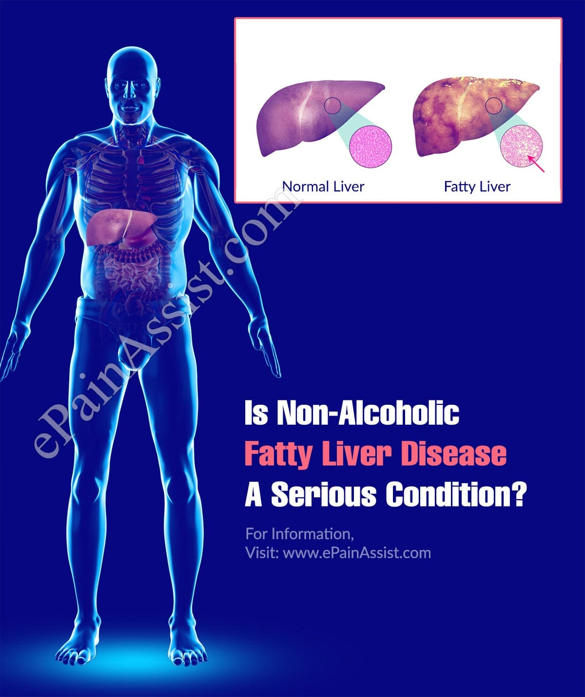 Is Non-Alcoholic Fatty Liver Disease A Serious Condition?