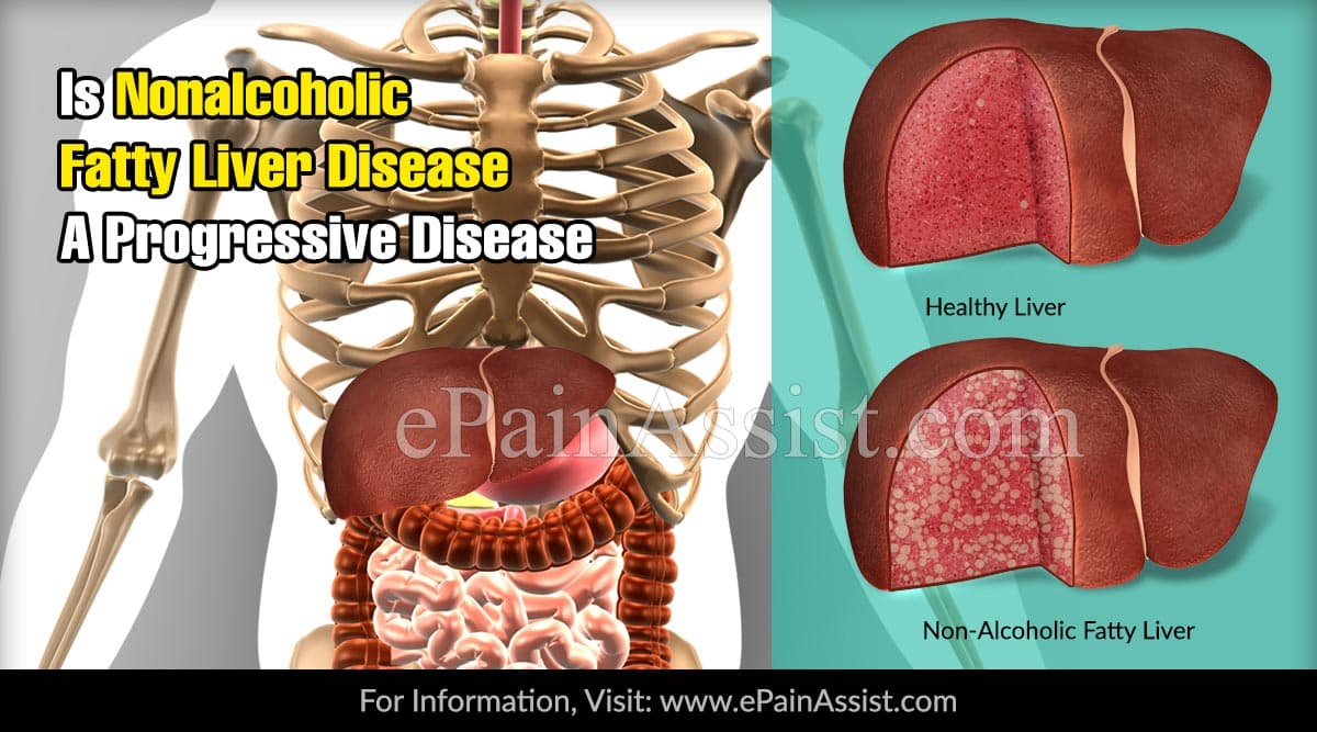 Is Nonalcoholic Fatty Liver Disease A Progressive Disease?