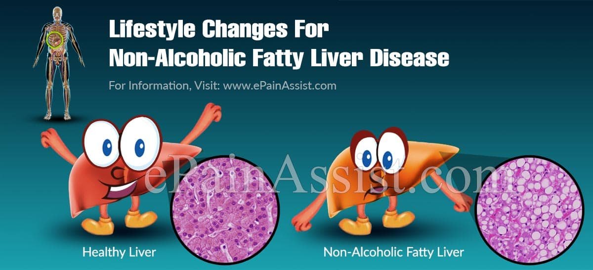 Lifestyle Changes For Non-Alcoholic Fatty Liver Disease