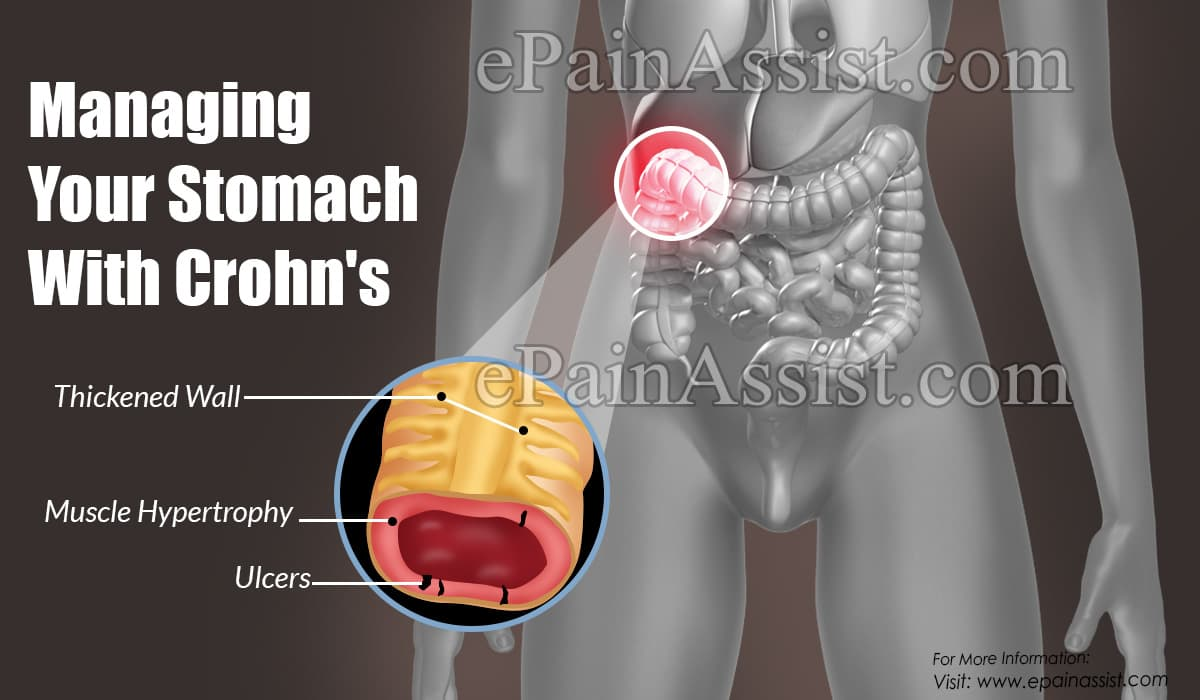 Managing Your Stomach With Crohn's