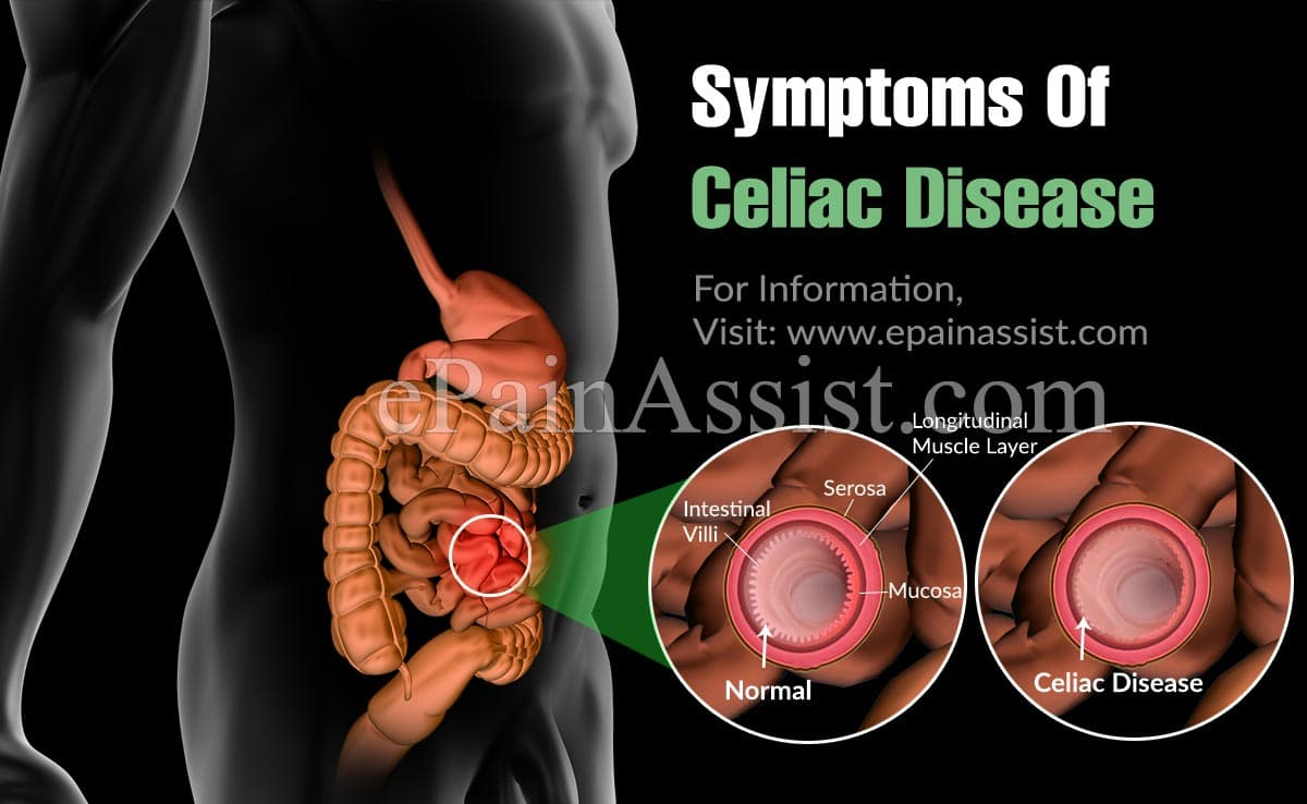What Is The Prognosis For Celiac Disease?