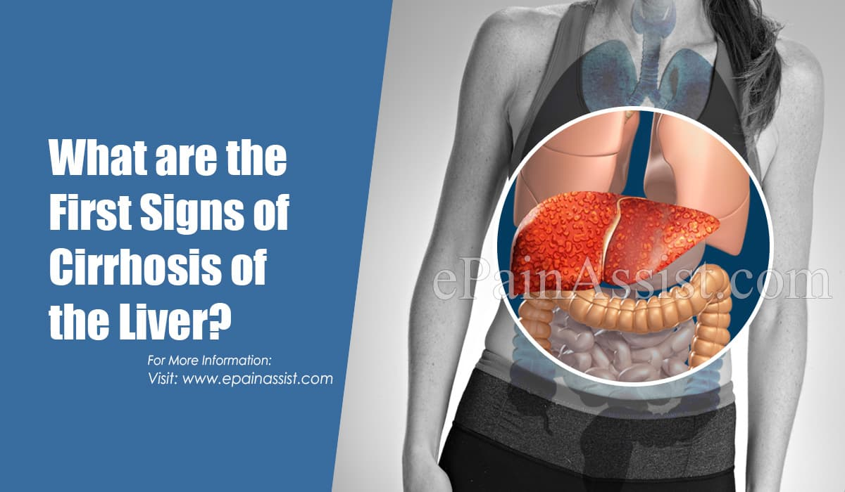 What are the First Signs of Cirrhosis of the Liver?
