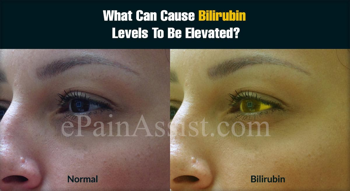 What Can Cause Bilirubin Levels To Be Elevated?