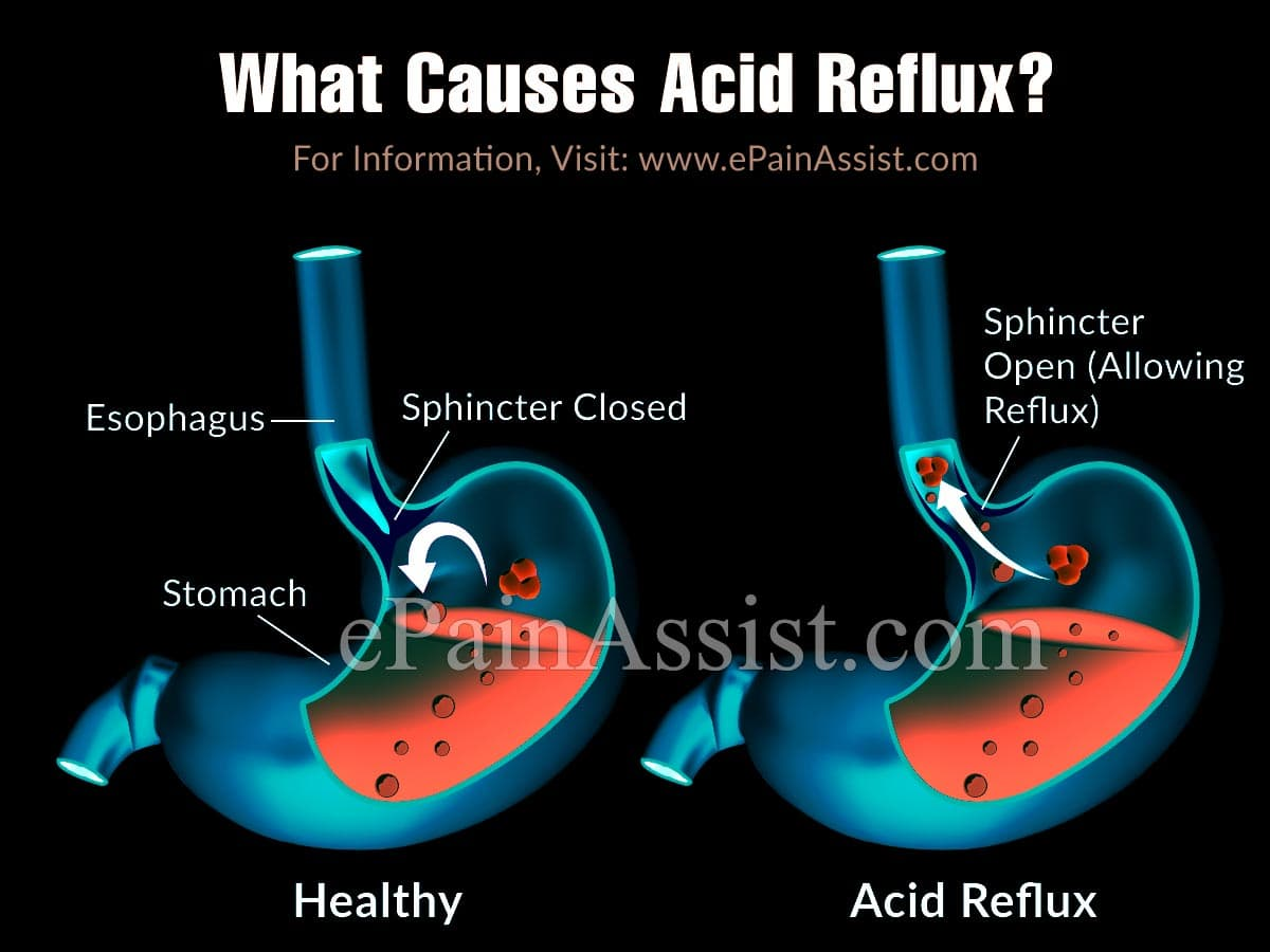 What Causes Acid Reflux?