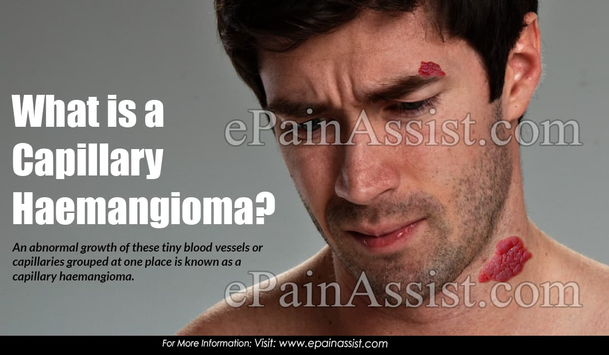 What is a Capillary Haemangioma?