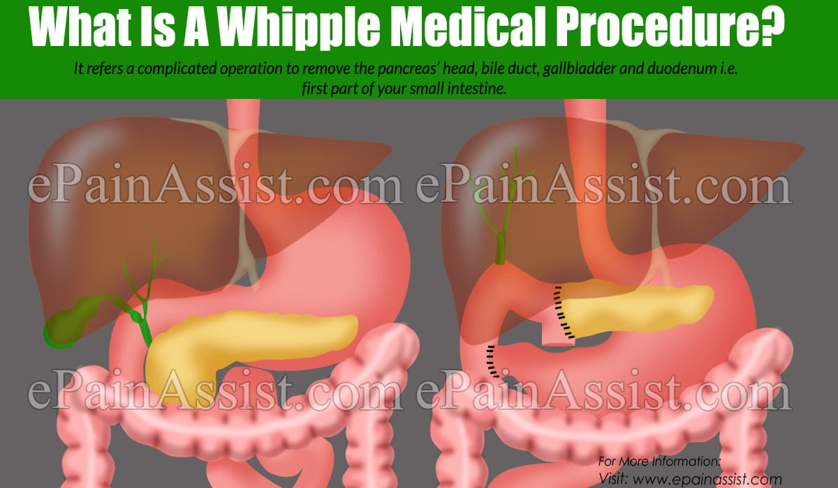 What Is A Whipple Medical Procedure?
