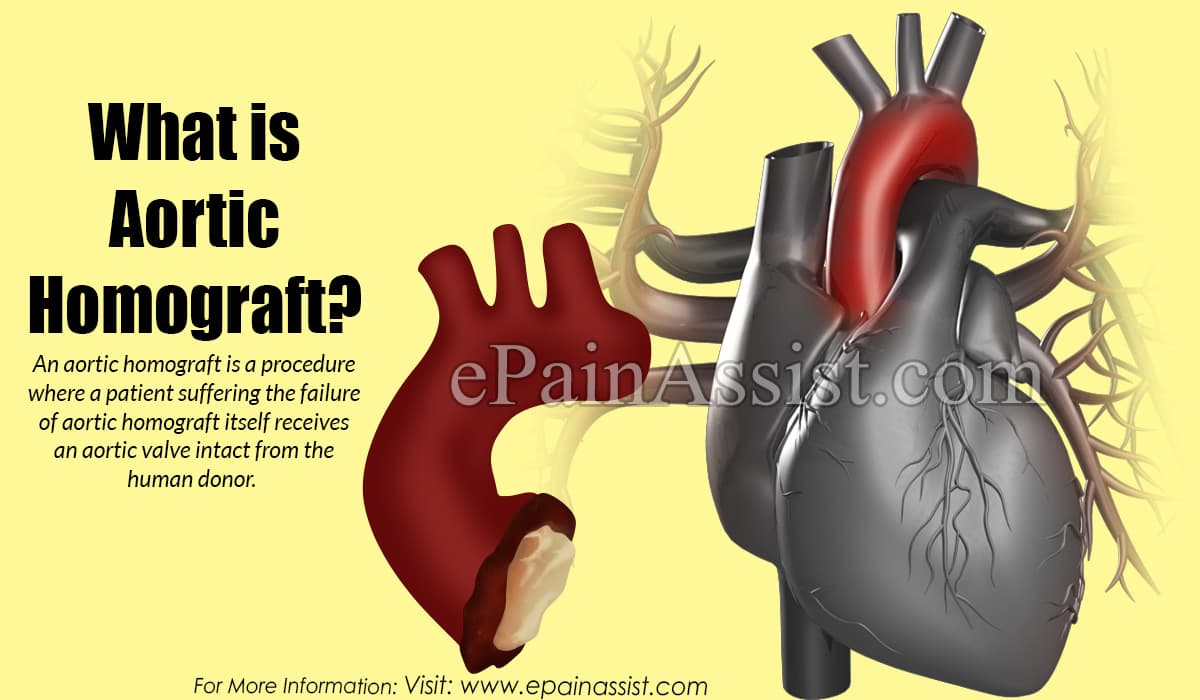 What is Aortic Homograft?