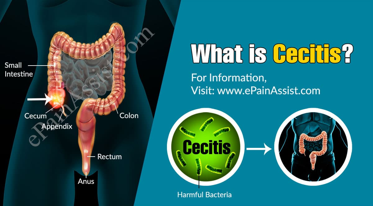 What is Cecitis?