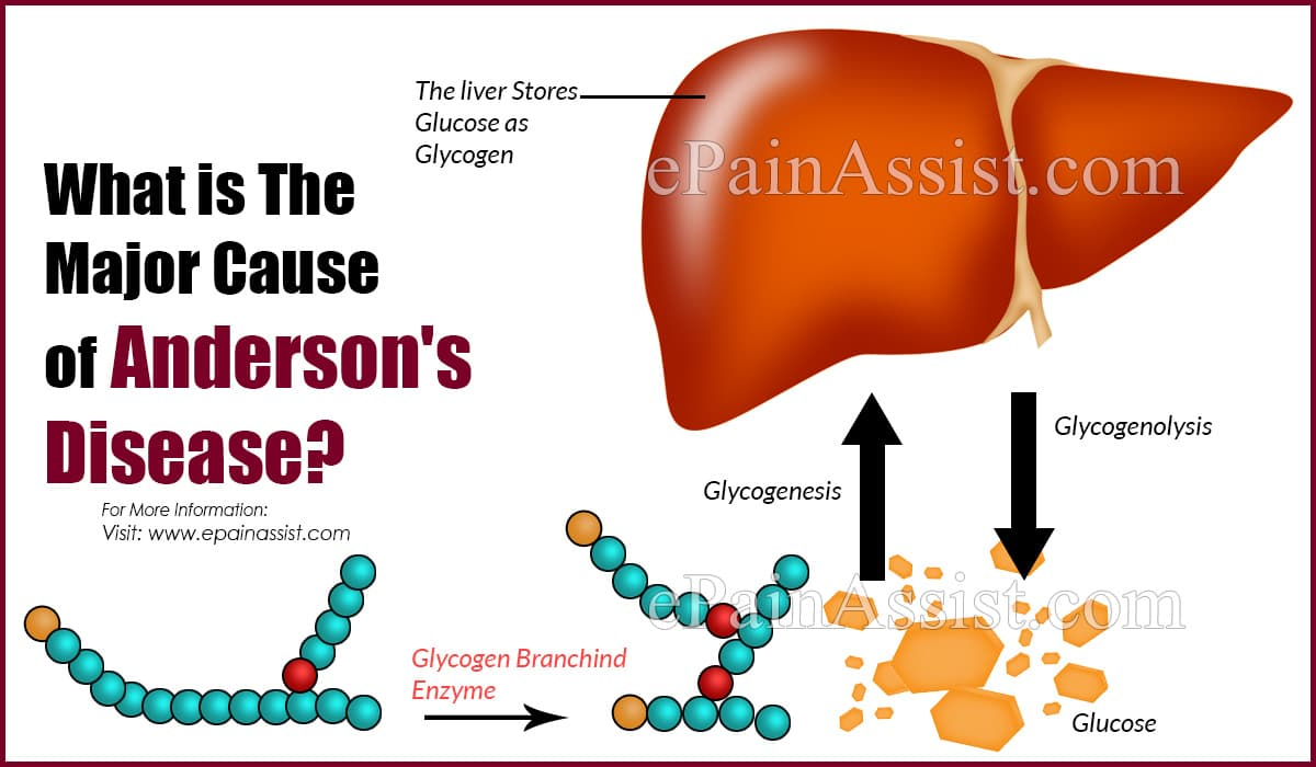 What is The Major Cause of Anderson's Disease?