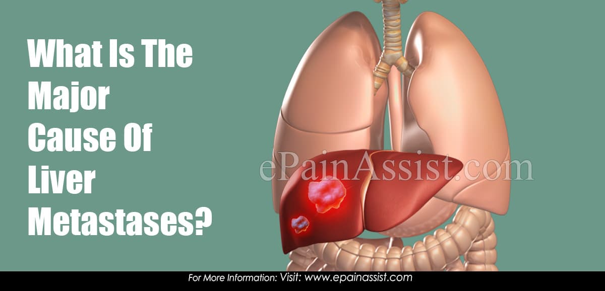 What Is The Major Cause Of Liver Metastases?