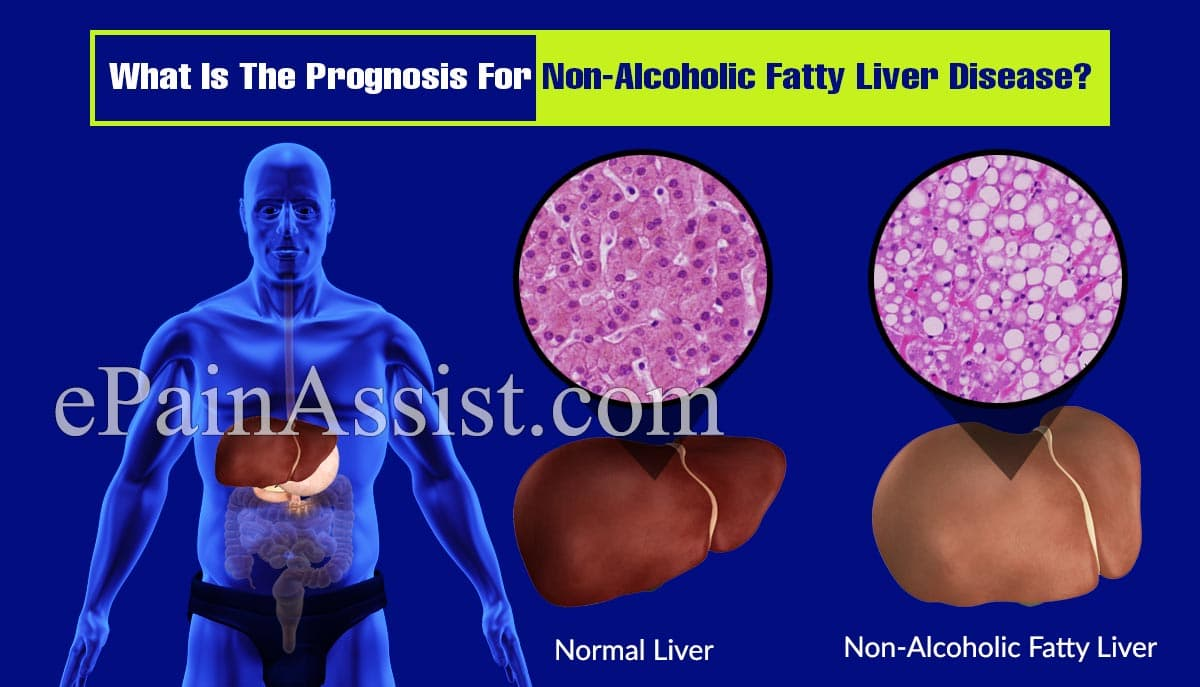 What Is The Prognosis For Non-Alcoholic Fatty Liver Disease?