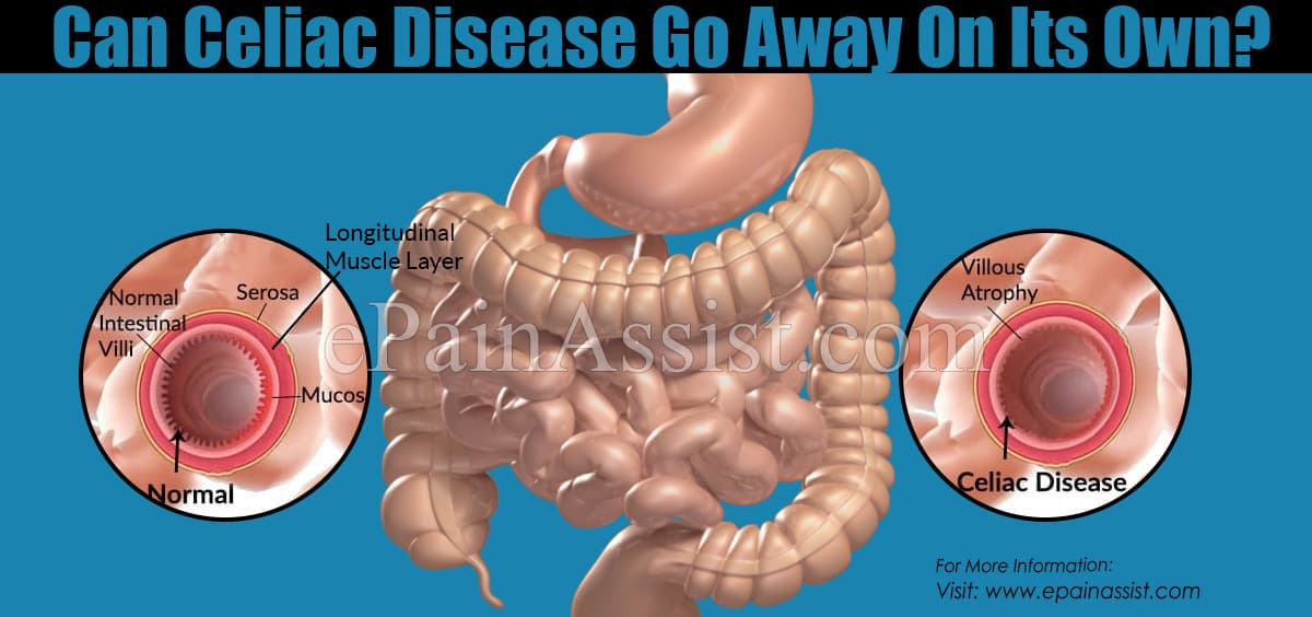 Can Celiac Disease Go Away On Its Own?