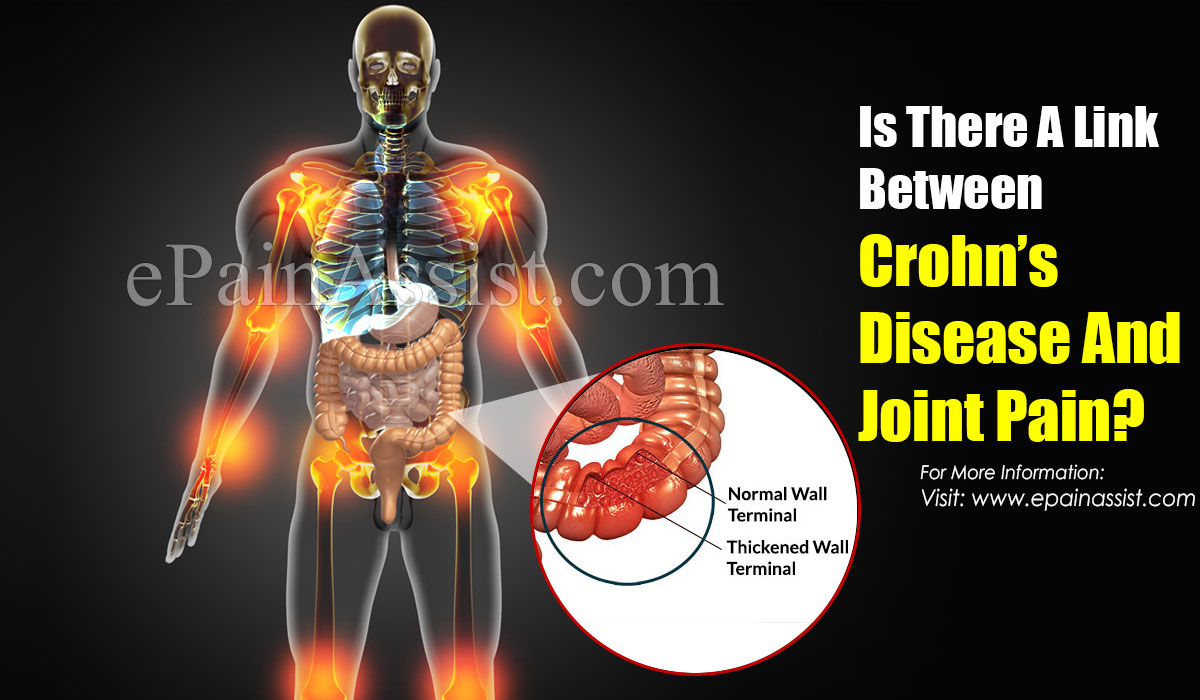 Is There A Link Between Crohn's Disease And Joint Pain?
