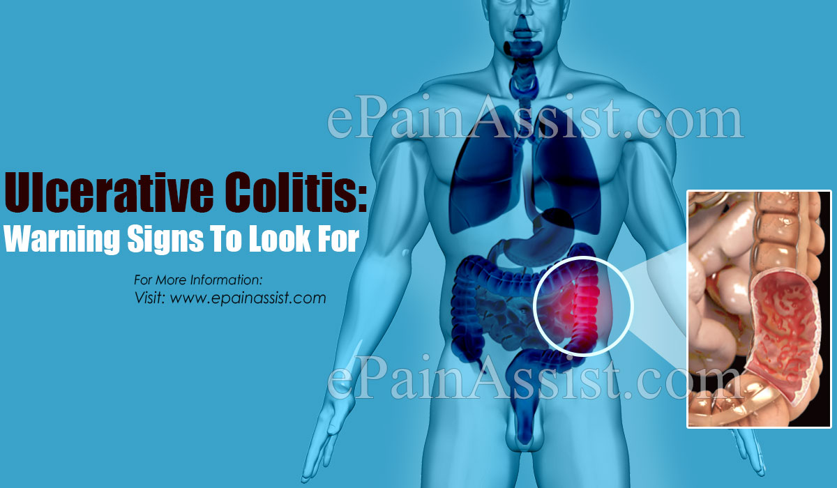 Ulcerative Colitis: Warning Signs To Look For