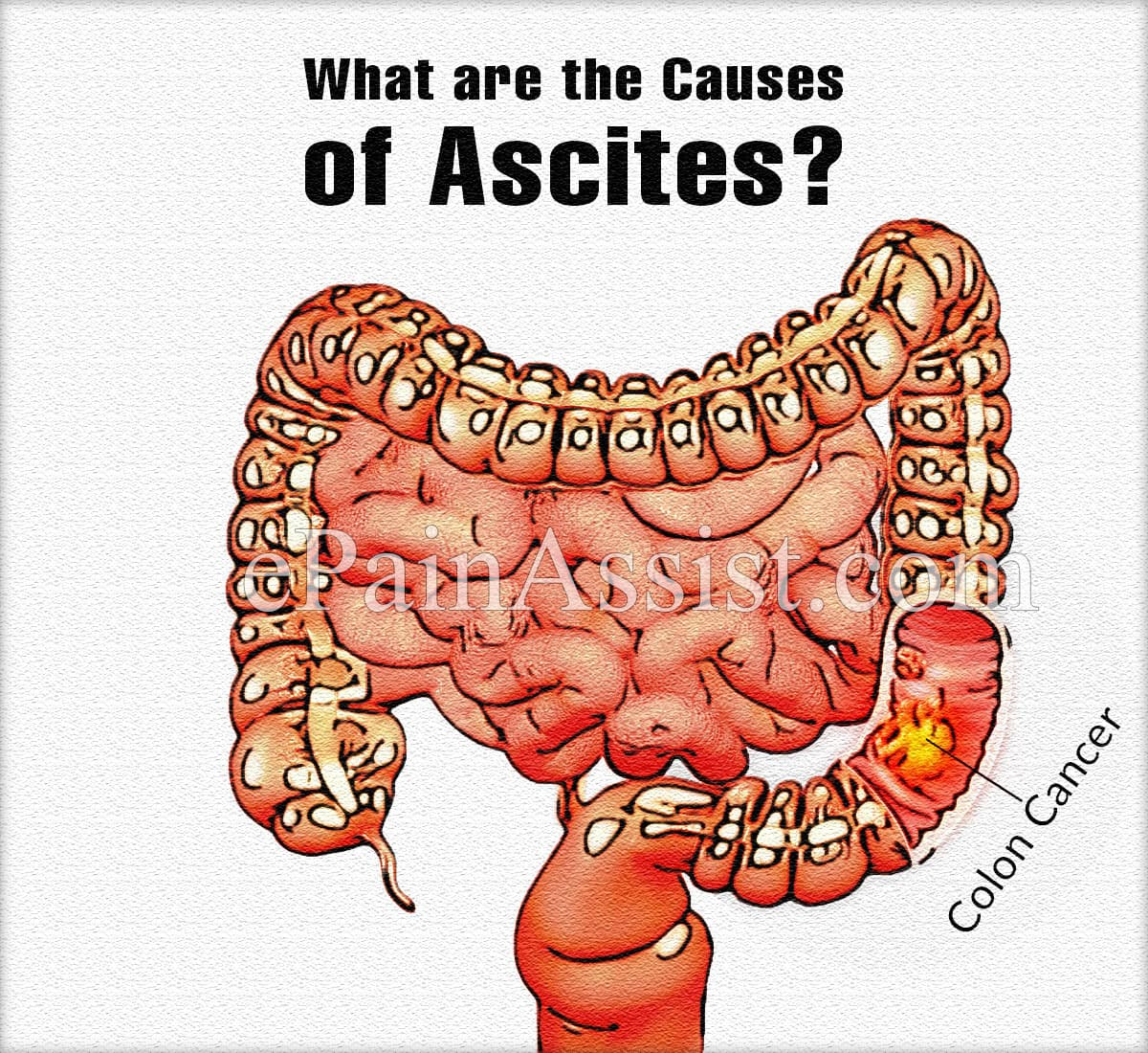 What are the Causes of Ascites?