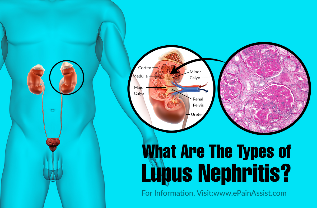 What Are The Types of Lupus Nephritis?