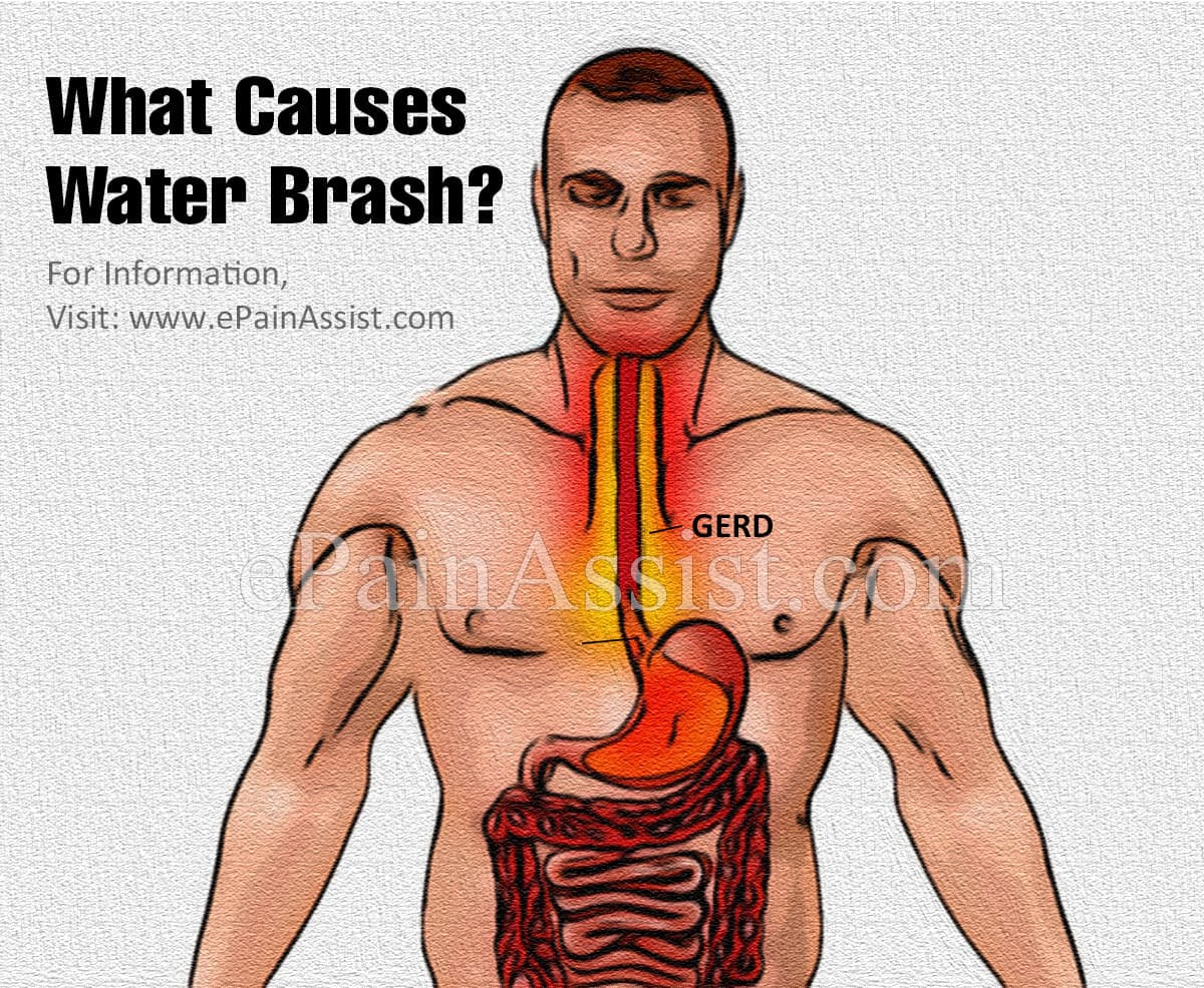 What Causes Water Brash?