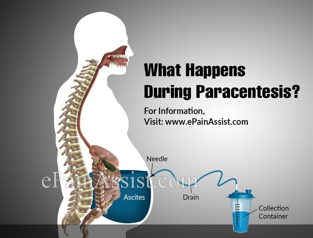 What Happens During Paracentesis?