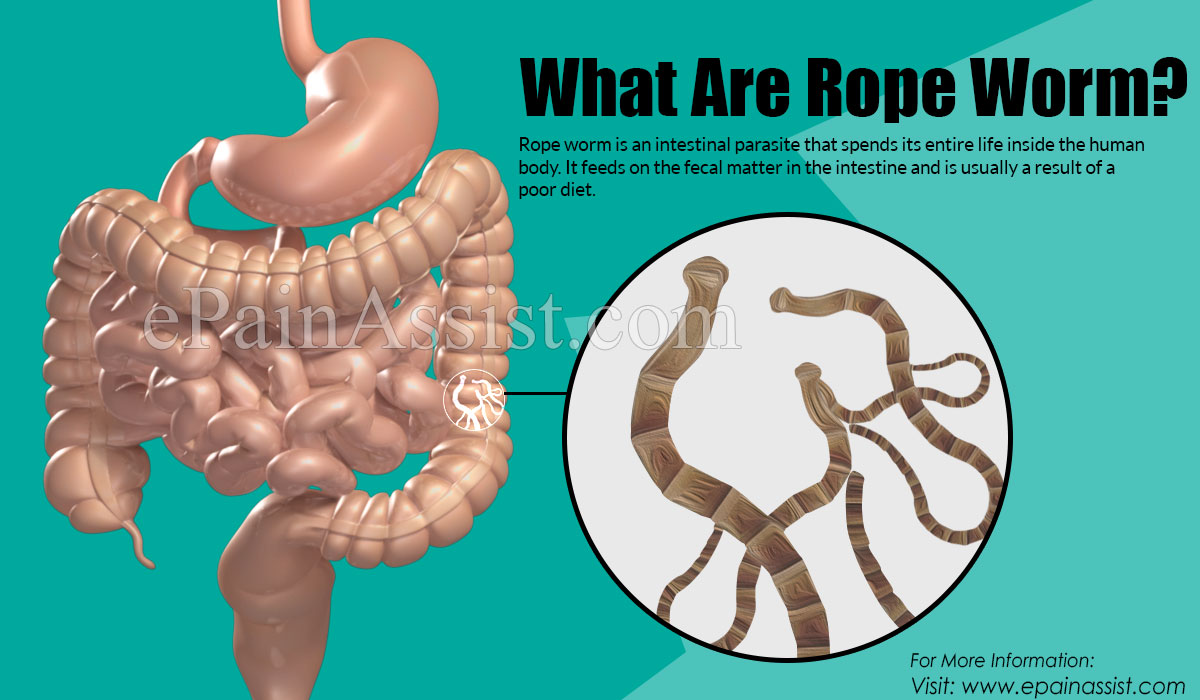 What Are Rope Worms?
