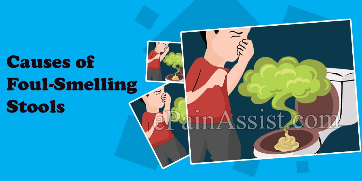 Causes of Foul-Smelling Stool