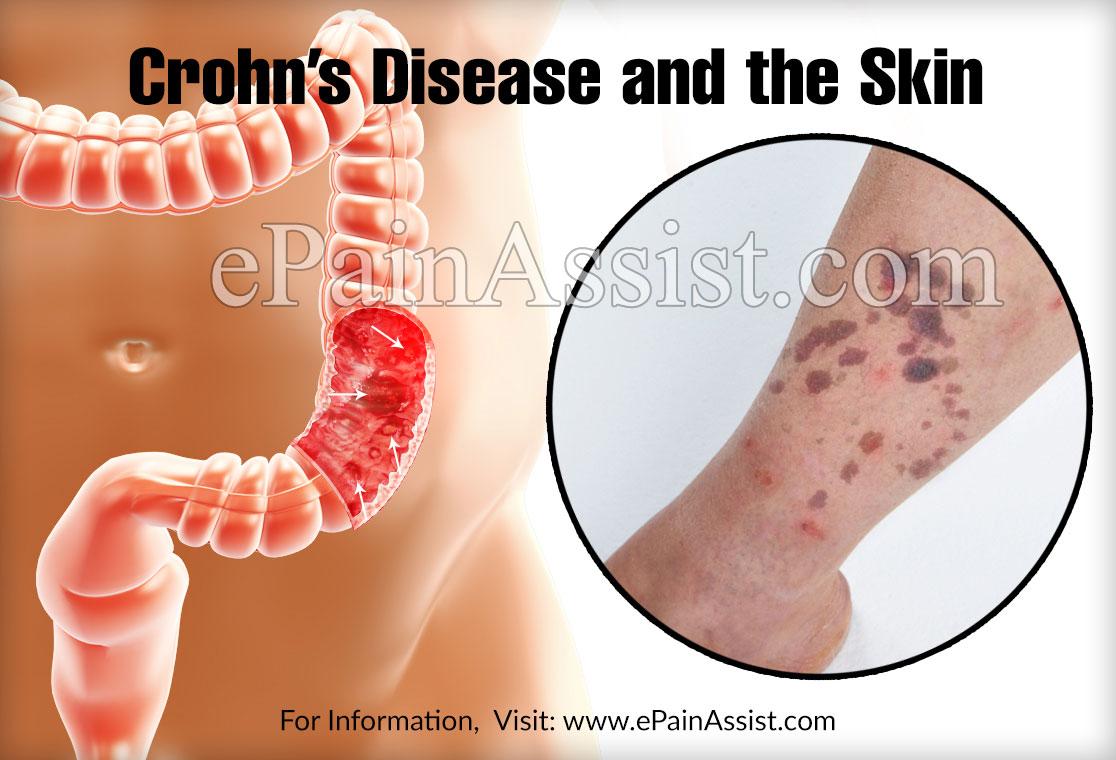 Crohn's Disease and the Skin