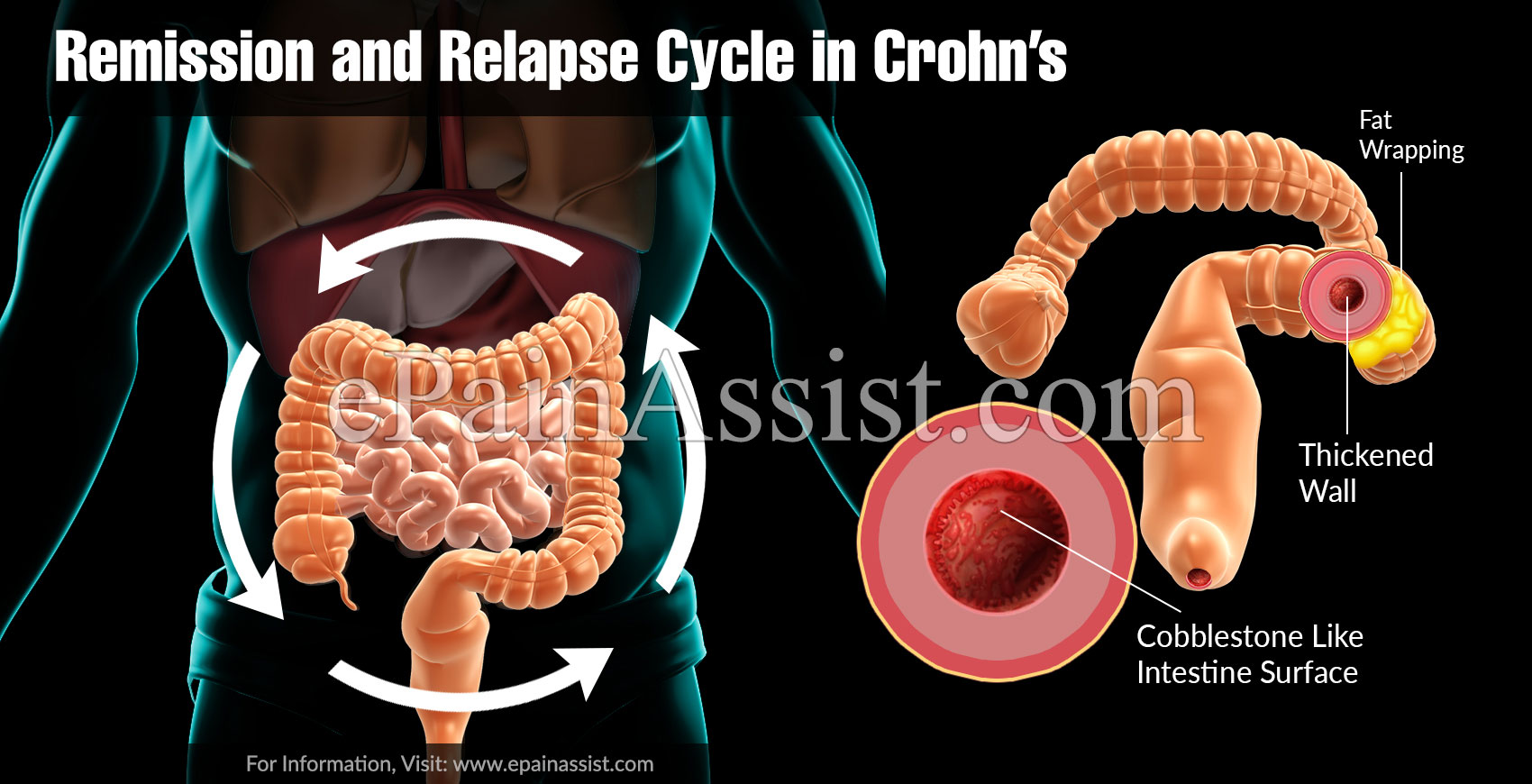 Remission and Relapse Cycle in Crohn's