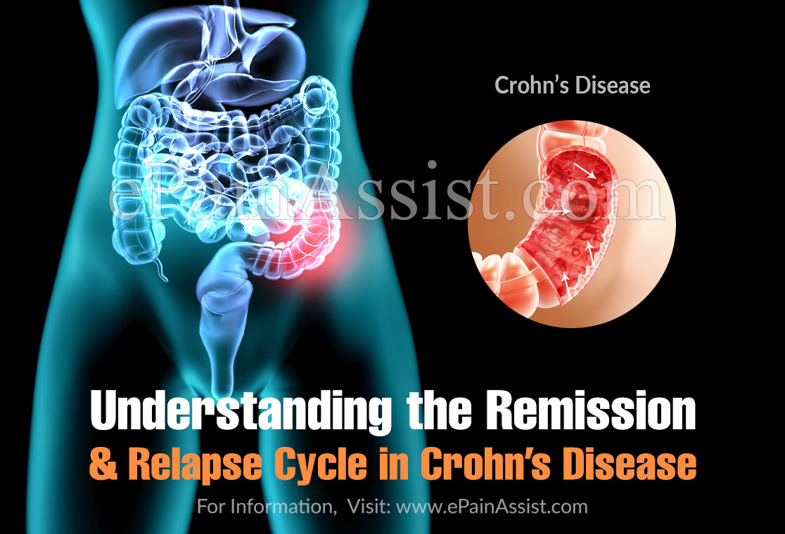 Understanding the Remission and Relapse Cycle in Crohn's Disease